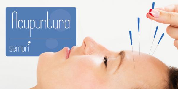 Tratamento de relaxamento com acupuntura